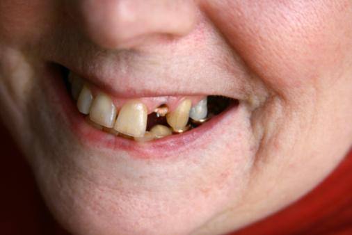 falta-de-dentes