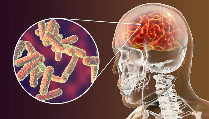 cerebro-bacteria-meningite-virus-cerebral-0518-1400x800